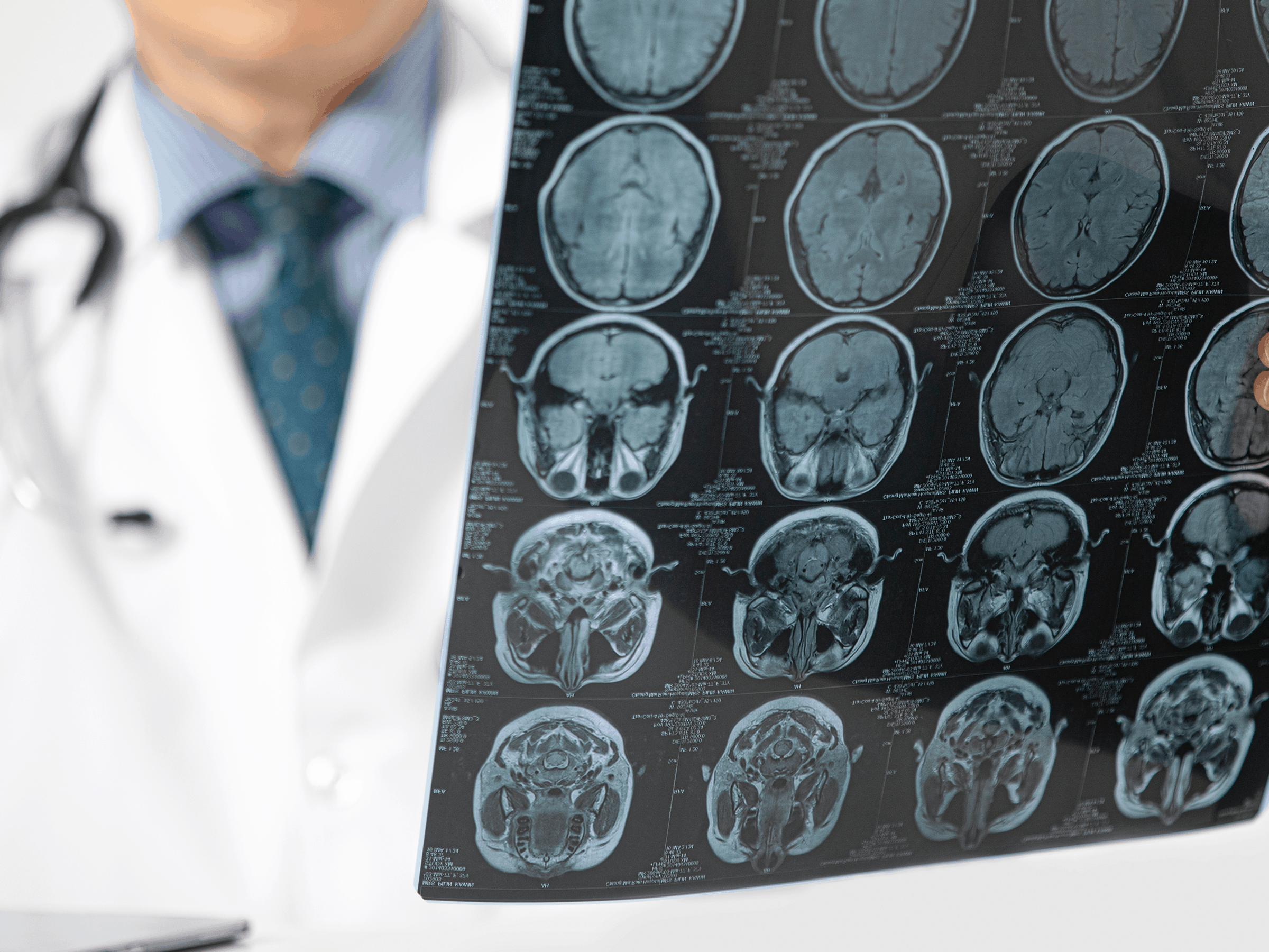 Neurosurgeon examines brain scans before advising any neurosurgery procedures