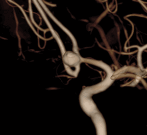 Dr. Hellinger Provides first WEB treatment of cerebral aneurysm
