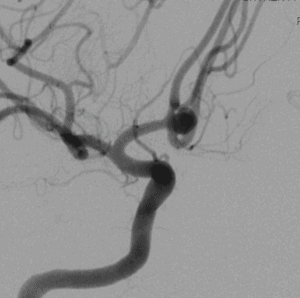 Dr. Hellinger provides first WEB treatment for cerebral aneurysm
