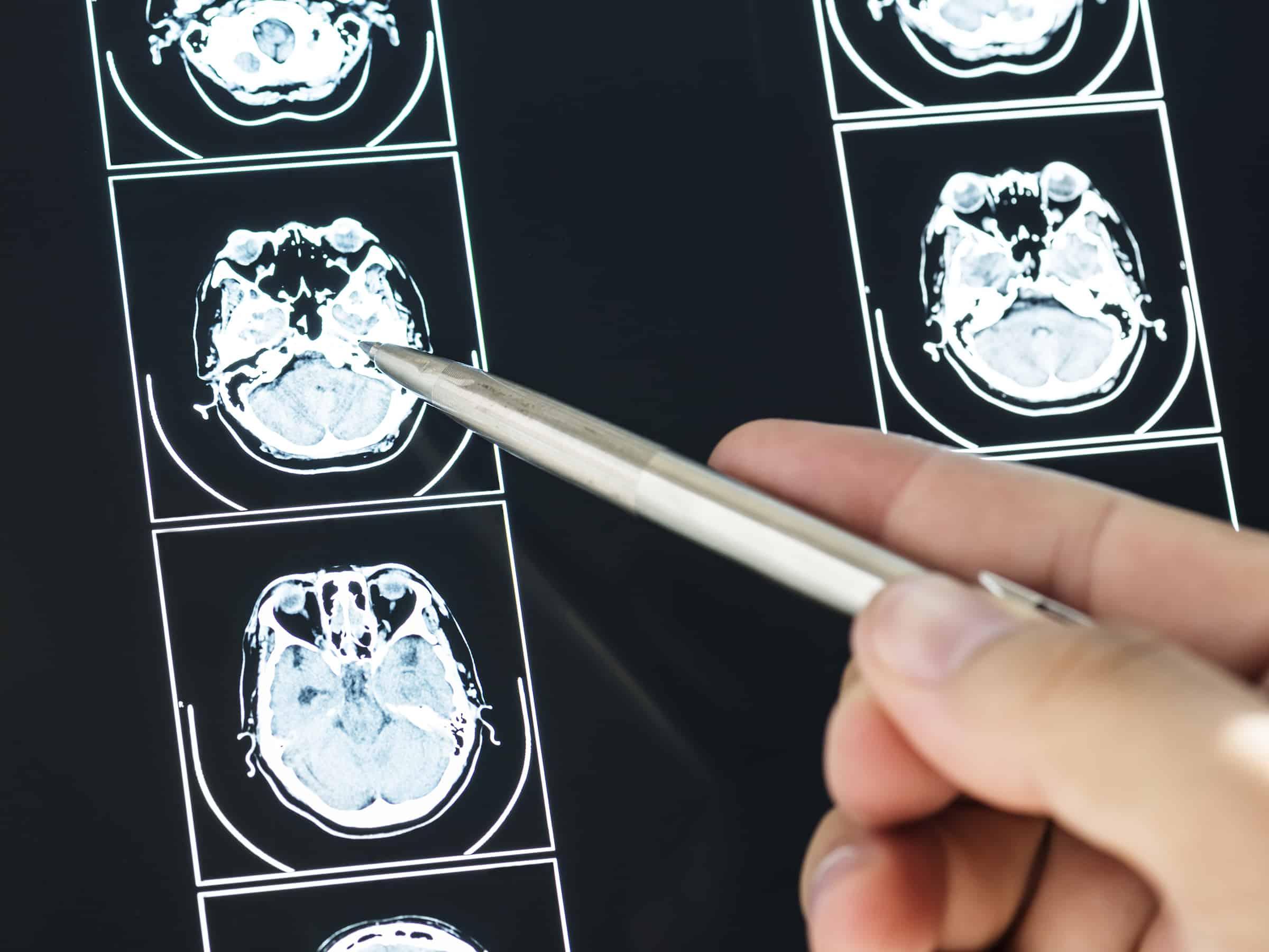 Understanding Brain Tumors