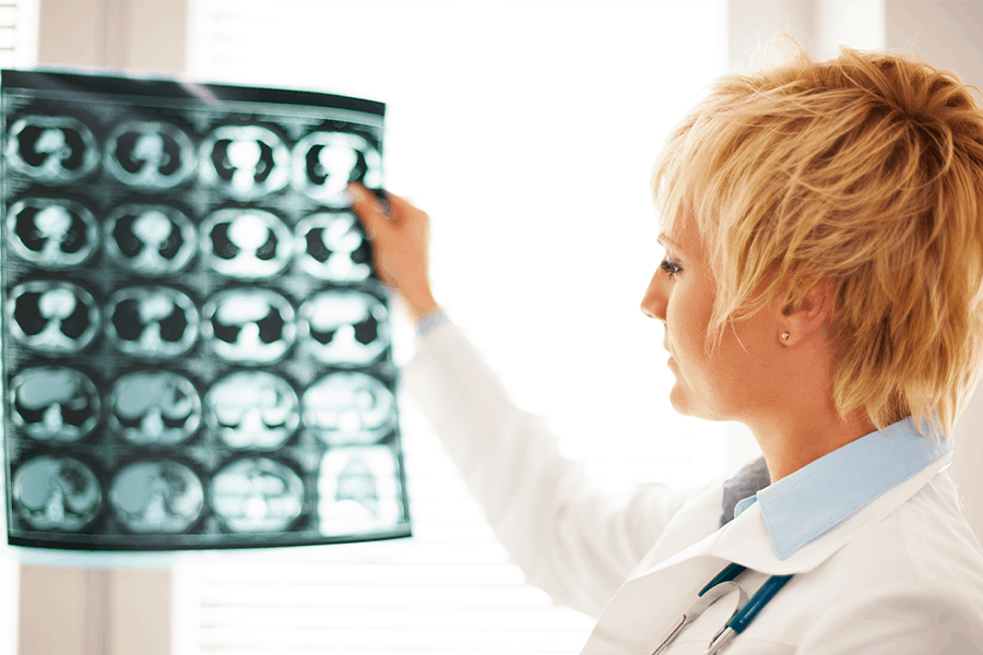 A specialist examines a scan of the brain for signs of stroke