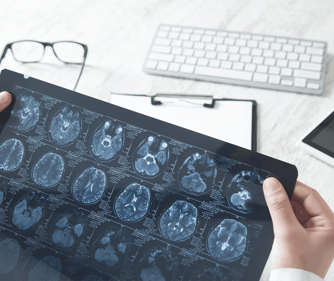 Brain scans to help determine if minimally invasive brain surgery is necessary and possible