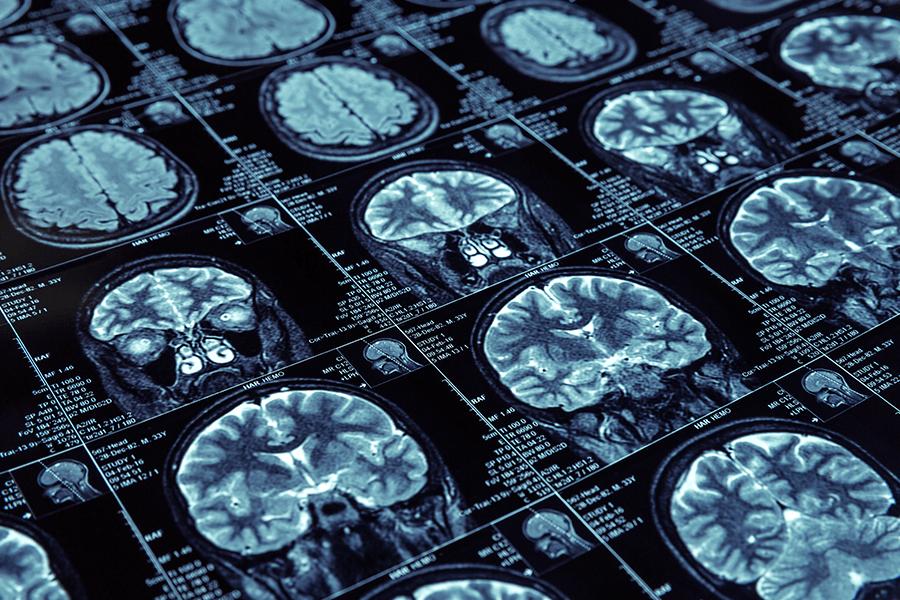 X-ray of brain before neurosurgery.