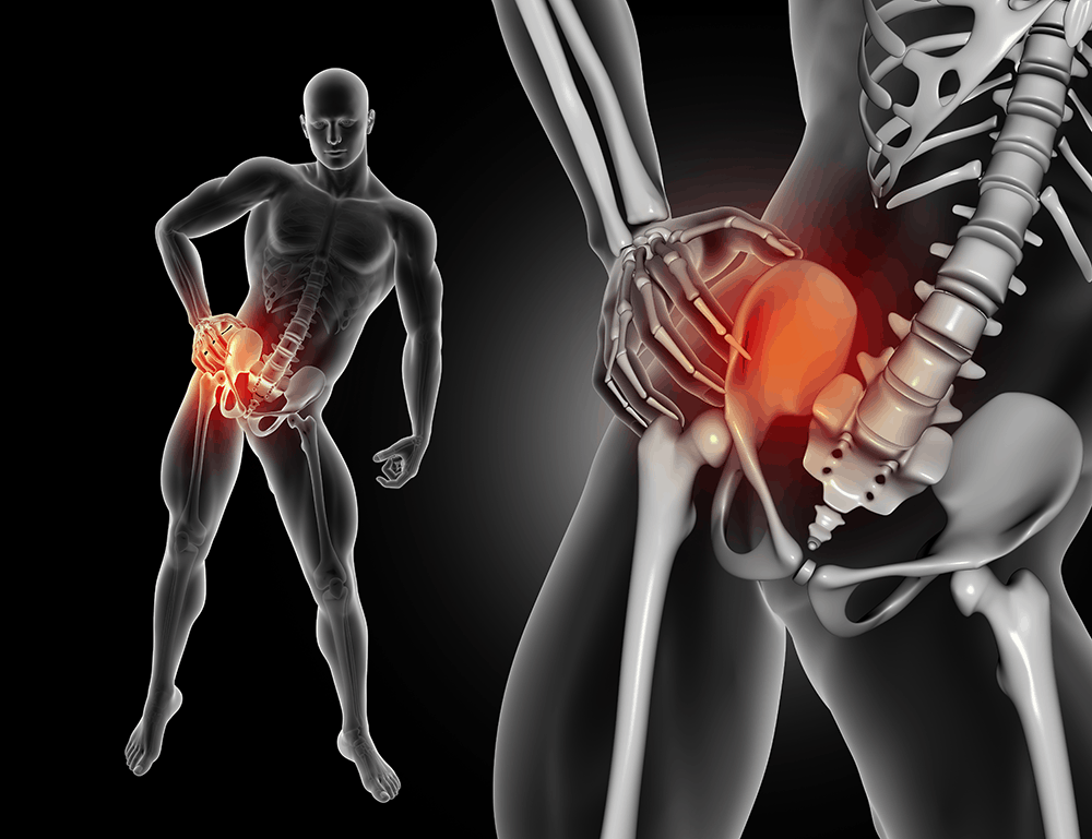 Pain in your lower back when standing up could be relieved by SI Joint Fusion