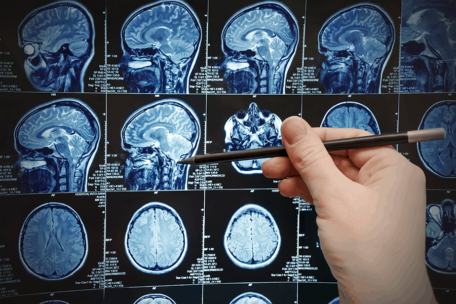 Specialist examines CT scan for brain tumors